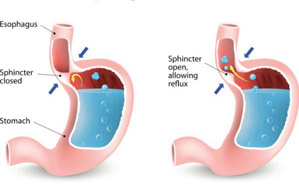 All you need to know about Gastro Esophageal Reflux Disease (GERD)