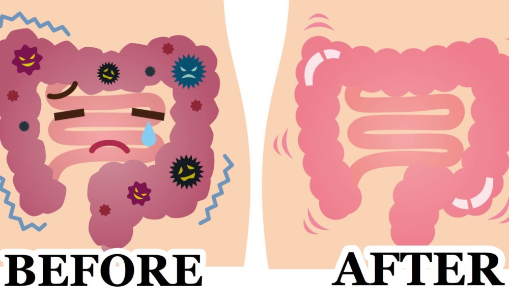 The Benefits of a Colon Cleanse